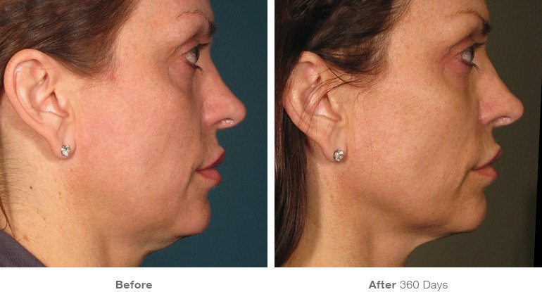 get rid of fine lines and wrinkles with Ultherapy