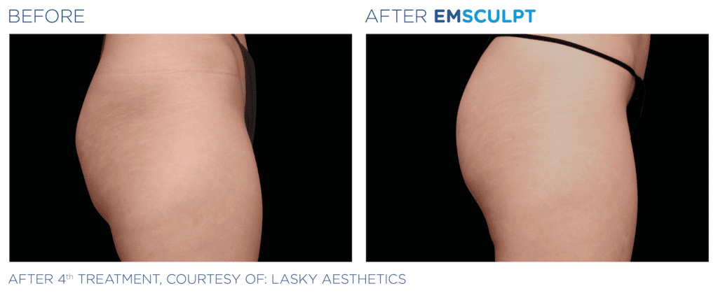 See the results of Emsculpt Before and After.