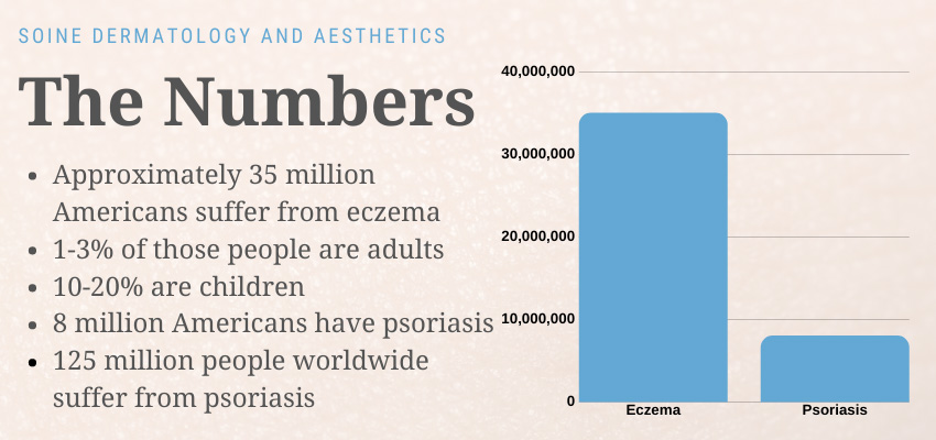 difference between eczema and psoriasis infographic
